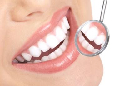 Så får du vitare tänder
